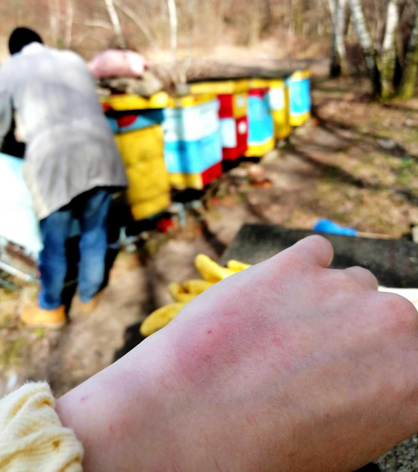 Jad pszczeli – jak sobie z nim radzić?